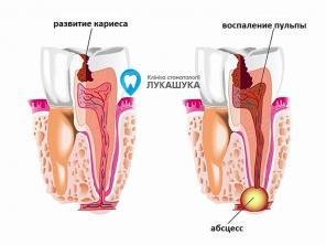 Абсцесс зуба: виды, симптомы, причины, осложнения, диагностика и лечение
