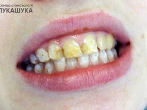 Поражение зубов из-за избытка фтора в воде: формы и лечение флюороза