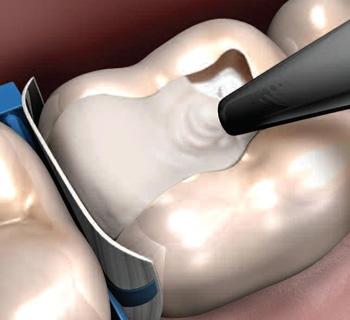 Заключения о реставрации зубов фотополимерными пломбами