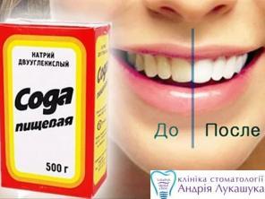 Как отбелить зубы содой. 5 основных способов чистки в домашних условиях