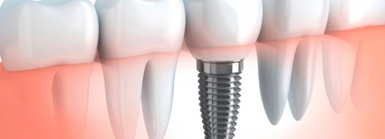 Инновационные покрытия для имплантатов