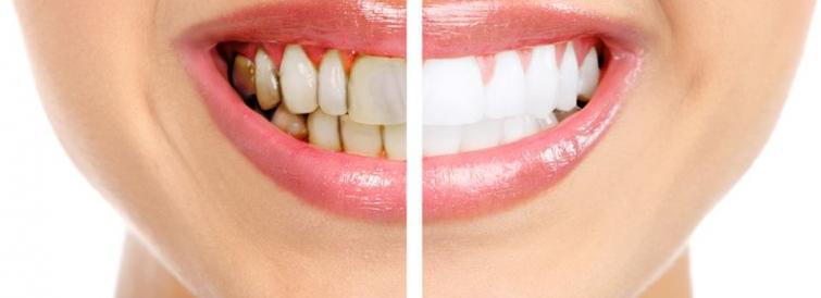 Нужно ли отбеливать зубы?