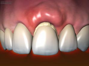 Периостит челюсти, зуба: виды, симптомы и лечение