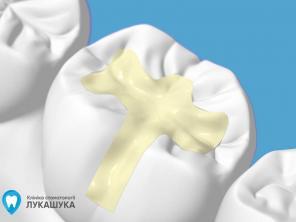 Пломба на зубы: как ставят пломбы на зубы в стоматологии и их виды