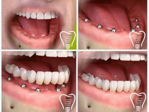 Как выбрать имплант зуба и какие лучше подойдут Вам