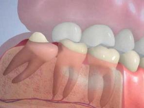 Как понять, что растет зуб мудрости: симптомы и первые признаки
