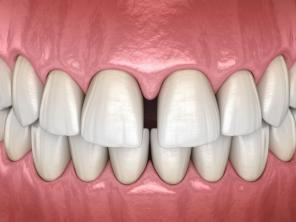 Щель между зубами. Как устранить?