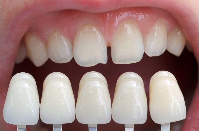 Что такое виниры на зубы