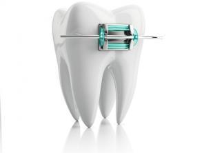 Что такое ортодонтическое лечение
