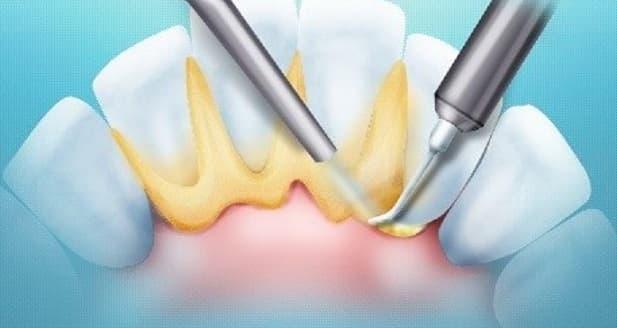 Поддесневые зубные отложения
