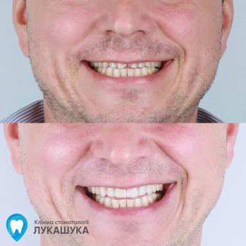 восстановление улыбки керамическими винирами