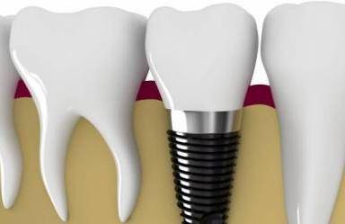 Одномоментная имплантация (сразу после удаления зуба)