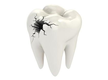 Пломбирование зубов (Лечение кариеса)