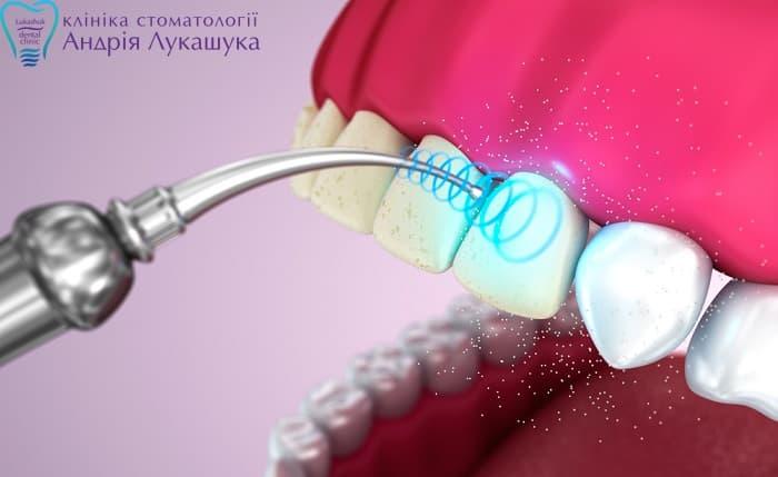 Чистка зубов ультразвуком | Фото 2