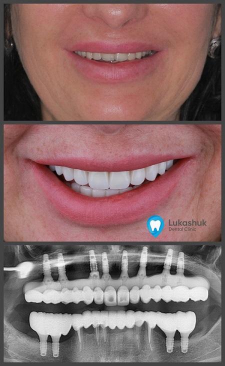 Базальная имплантация зубов | Фото 3
