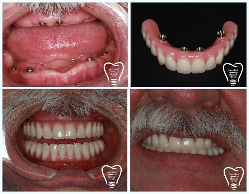 Кому нужна имплантация зубов | Фото 2 - Клиника Лукашука