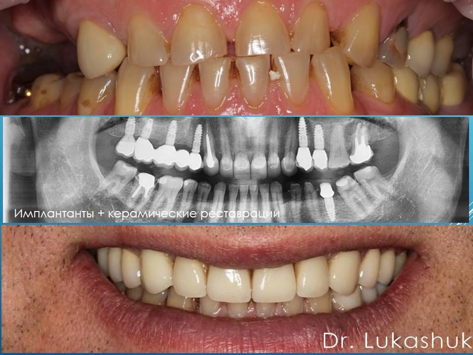 Кому нужна имплантация зубов | Фото 1 - Клиника Лукашука