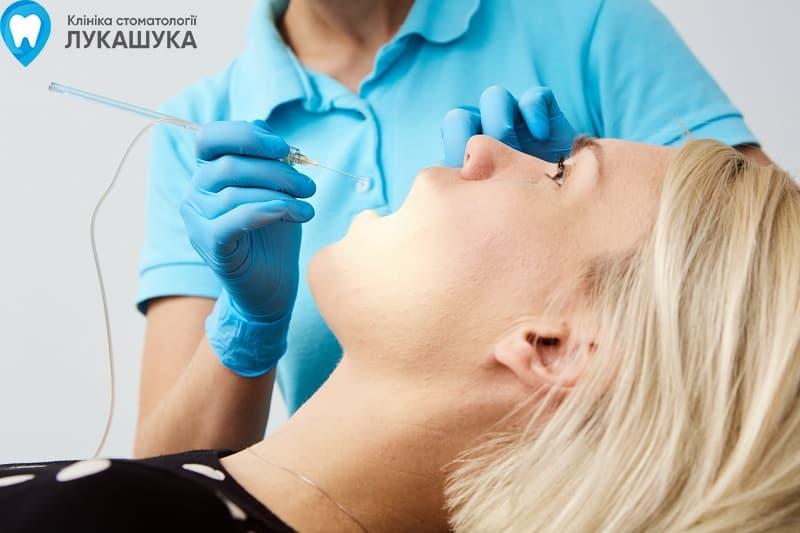 Лечение кариеса, цена | Фото 2 - Клиника Лукашука