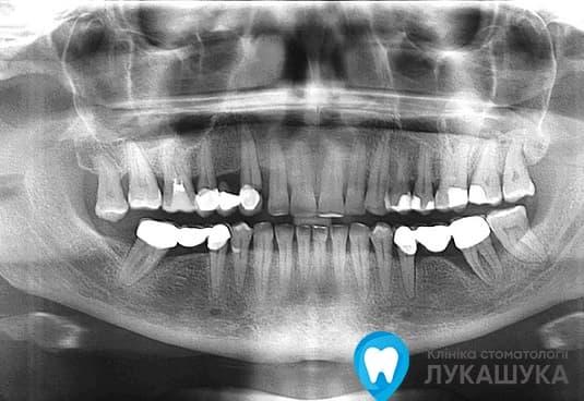 Панорамный снимок зубов (ортопантомограмма) в стоматологии в Киеве | Клиника Лукашука