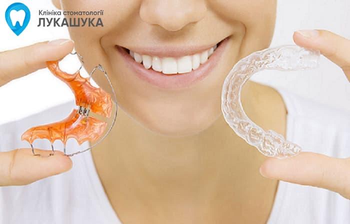 Пластинки на зубы | Выравнивание зубов пластинками, Фото 2 - Клиника Лукашука