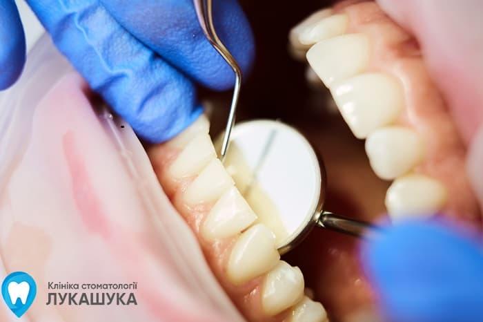 Пломбирование зубов Киев | Фото 1 - Клиника Лукашука