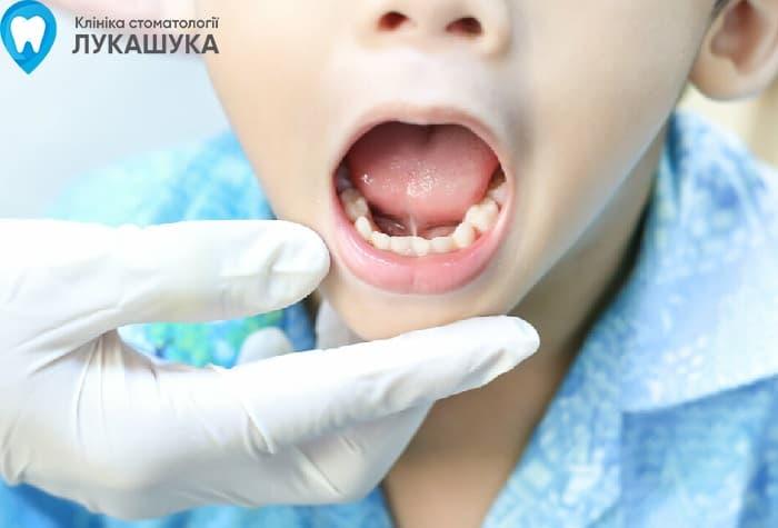 Подрезание уздечки языка | Фото 5 - Клиника Лукашука