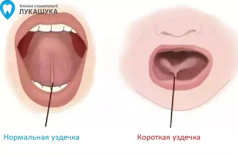 Пластика уздечки языка | Фото 2 - Клиника Лукашука