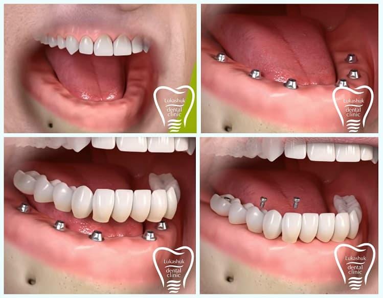 Имплантация зубов ЗА и ПРОТИВ | Фото 2 - Клиника Лукашука