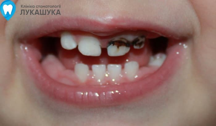 Серебрение зубов | Фото 4 - Клиника Лукашука