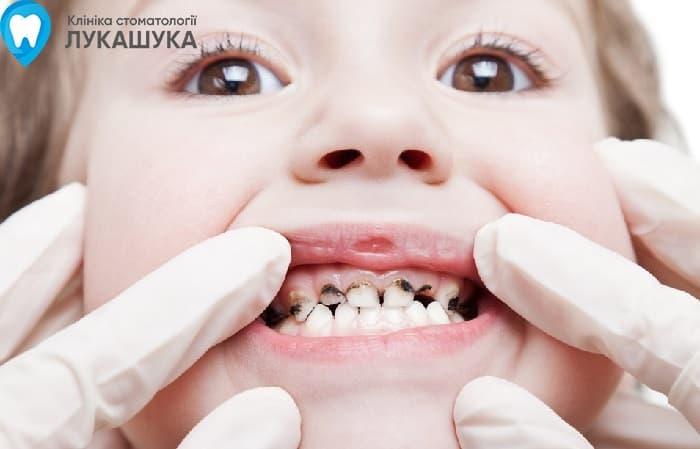 Серебрение зубов | Фото 1 - Клиника Лукашука