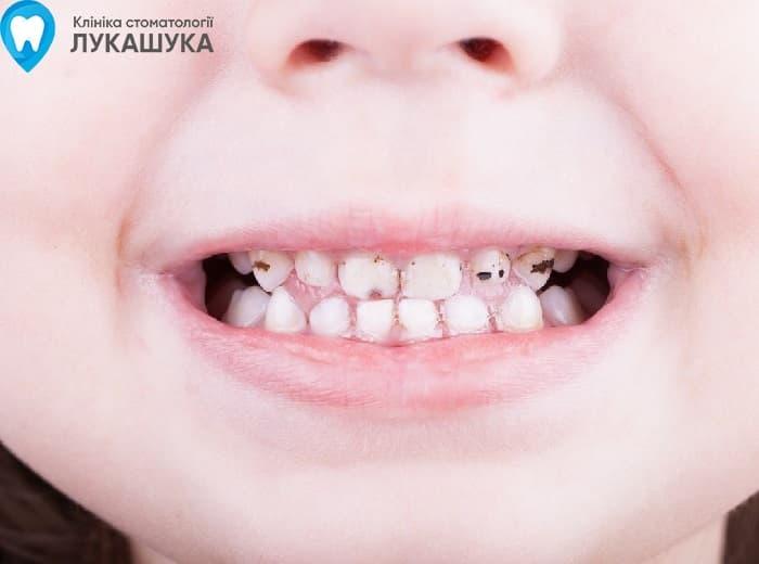 Серебрение зубов | Фото 2 - Клиника Лукашука