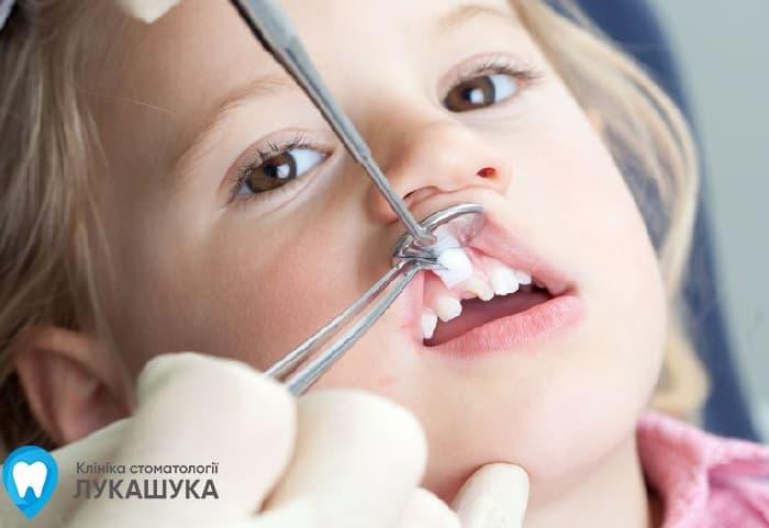 Удаление молочных зубов | Фото 1 - Клиника Лукашука
