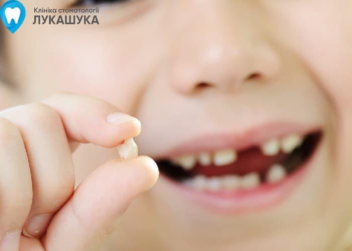 Удаление молочных зубов | Фото 4 - Клиника Лукашука
