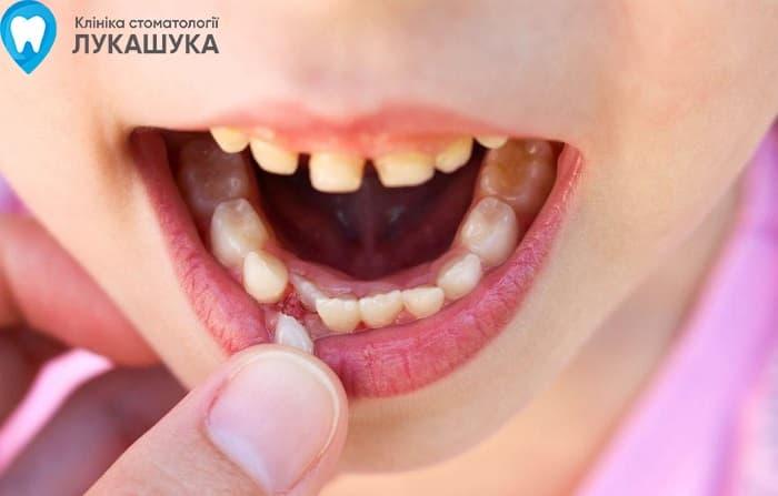 Удаление молочных зубов | Фото 2 - Клиника Лукашука