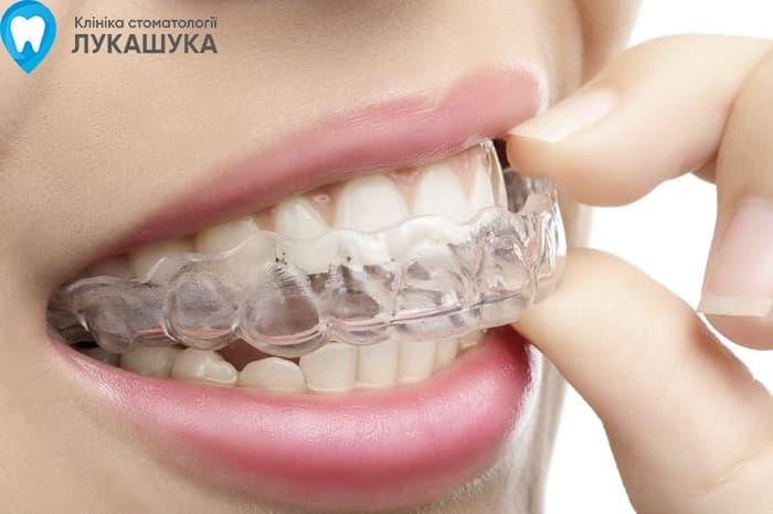 Выравнивание зубов капами (инвизилайн) Киев | Фото 1 - Клиника Лукашука