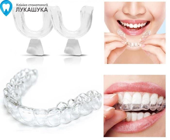 Выравнивание зубов Киев | Фото 1 - Клиника Лукашука
