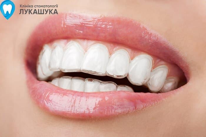 Выравнивание зубов Киев | Фото 3 - Клиника Лукашука