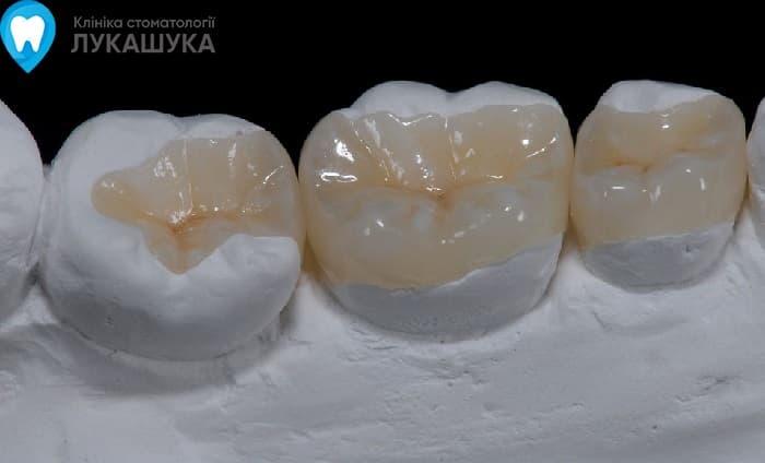 Вкладка в зуб | Фото 2 - Клиника Лукашука