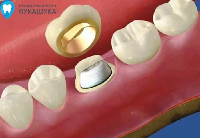 Вкладка в зуб | Фото 3 - Клиника Лукашука