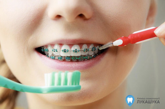Средства для очищения зубов и брекетов