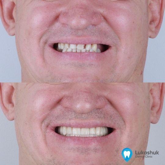 Адентия верхней и нижней челюсти | Фото 1 - Клиника Лукашука