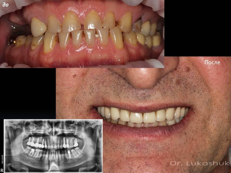 Фото 1 имплантации зубов в клинике Лукашука в Киеве на Теремках