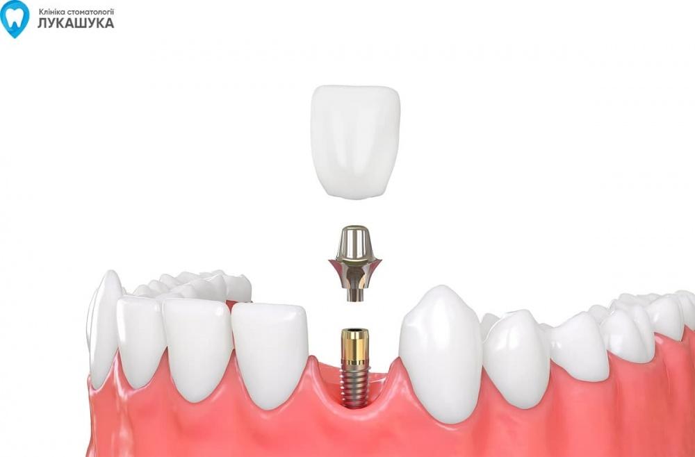 Установка абатмента в стоматологии | Фото - Клиника Лукашука