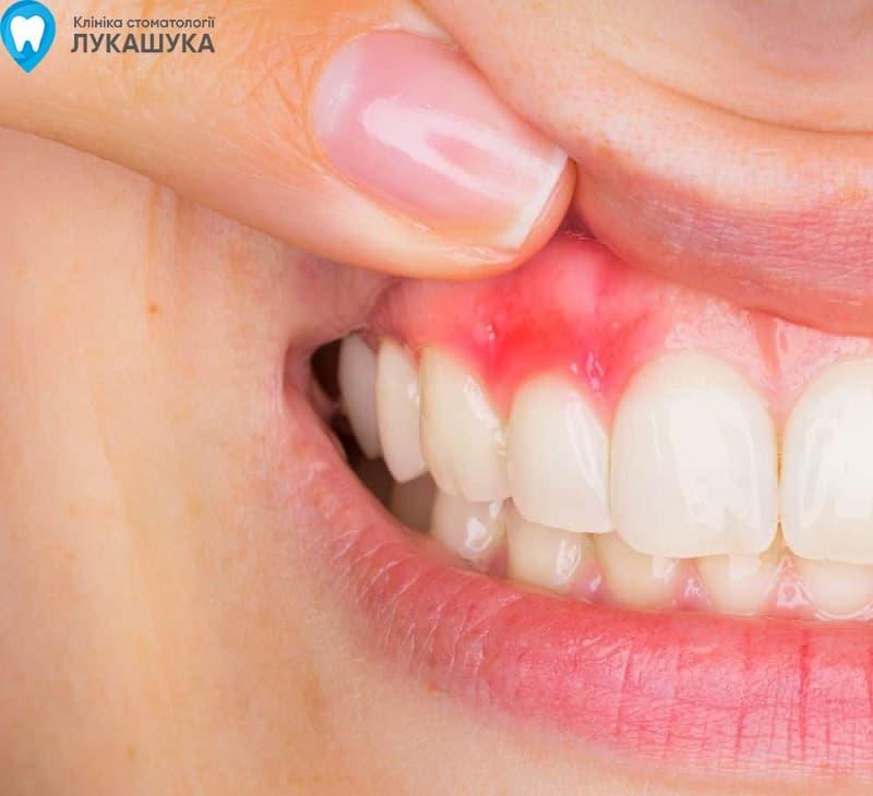 Абсцесс зуба | Фото 2 - Клиника Лукашука