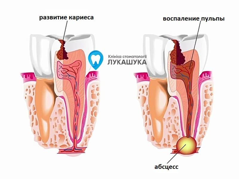 Абсцесс зуба | Фото 1 - Клиника Лукашука