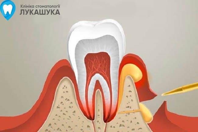 Абсцесс зуба | Фото 5 - Клиника Лукашука