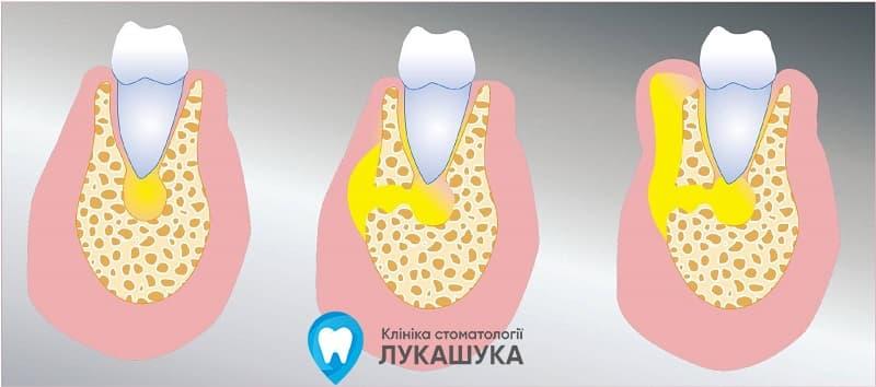 Абсцесс зуба | Фото 3 - Клиника Лукашука