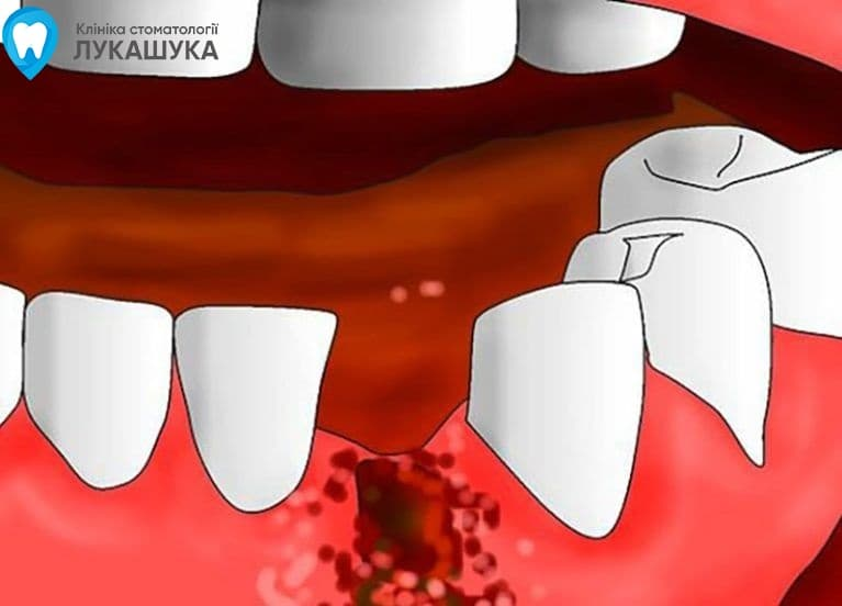 Альвеолит после удаления зуба | Фото 2 - Клиника Лукашука