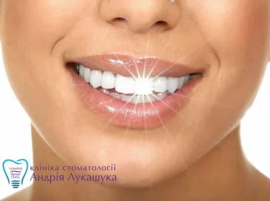 Белоснежная улыбка и здоровые зубы не одно и тоже | Фото - Клиника Лукашука