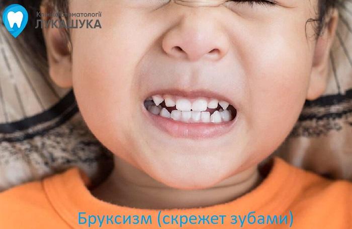 Бруксизм или скрип зубами во сне | Фото 5 - Клиника Лукашука